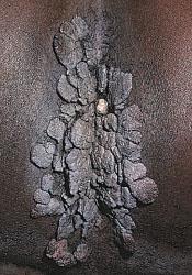 condyloma acuminatum of perianal region